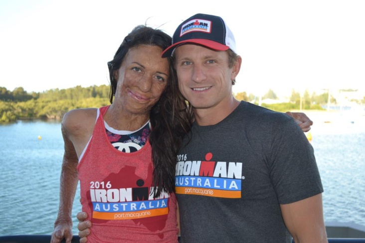 Source photo : Facebook Turia Pitt
